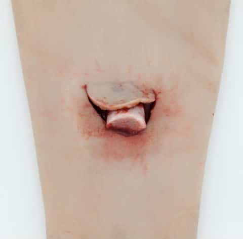Open Fracture SIMSLEEVE